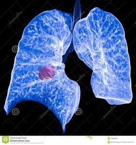 Lung With Cancer