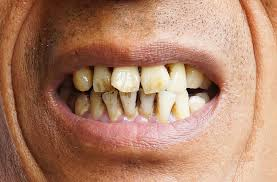 Smoking Affects Teeth